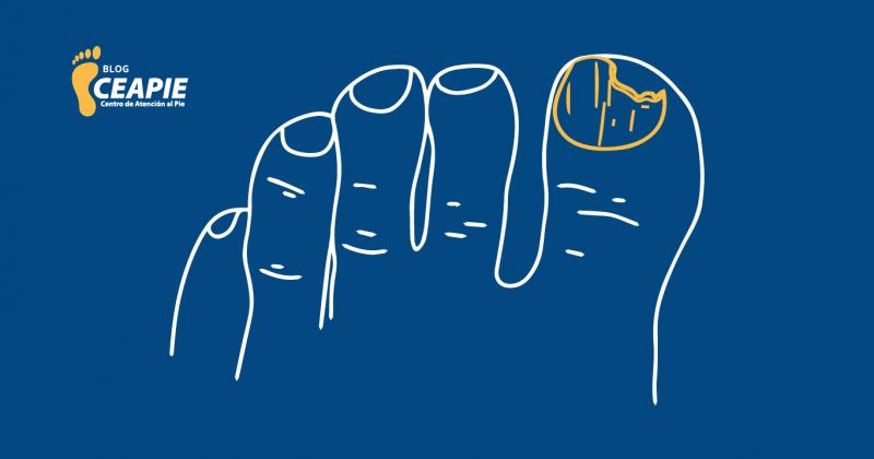 Onicomi…¿Qué? TODO lo que debes saber sobre los hongos en las uñas