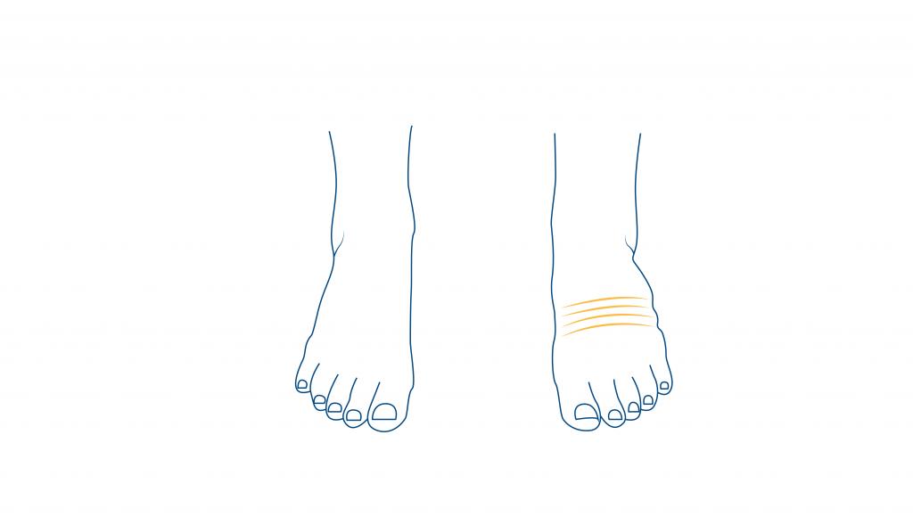 dolor-de-pies-durante-el-embarazo-edema-blog-CEAPIE