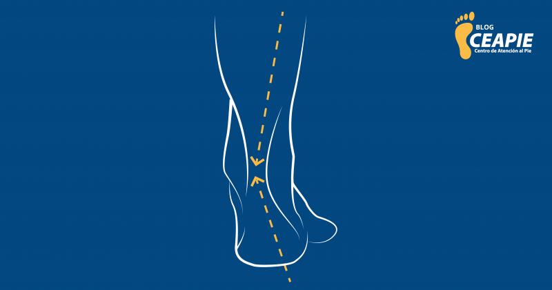 ¿Tienes dolor de espalda o en las rodillas? Tus pies pueden ser los causantes
