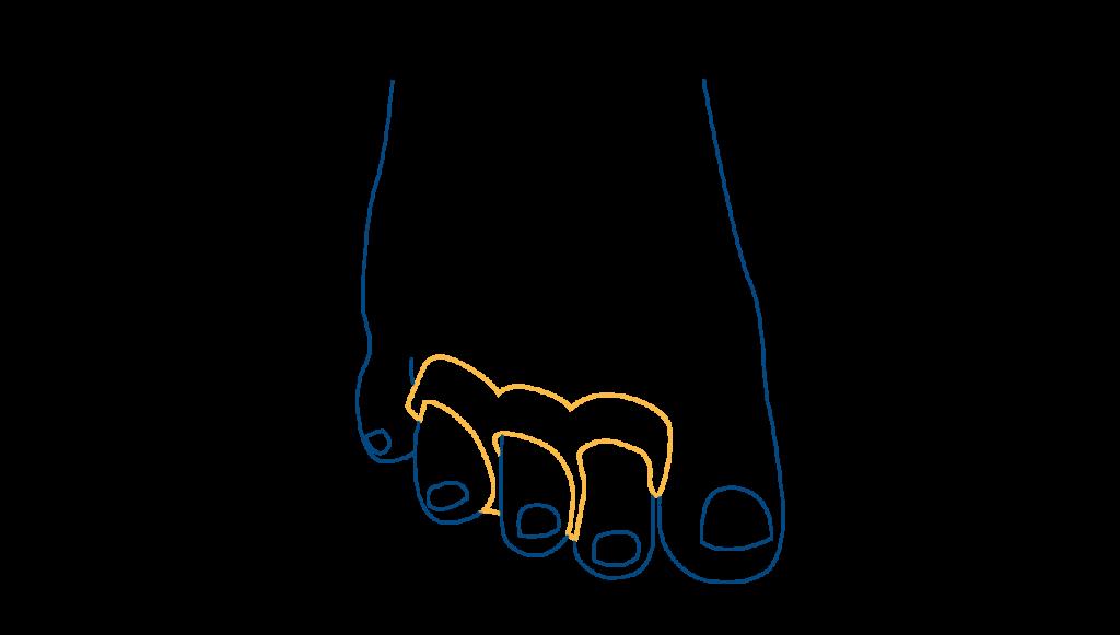 ortesis-dedos-en-garra-blog-ceapie