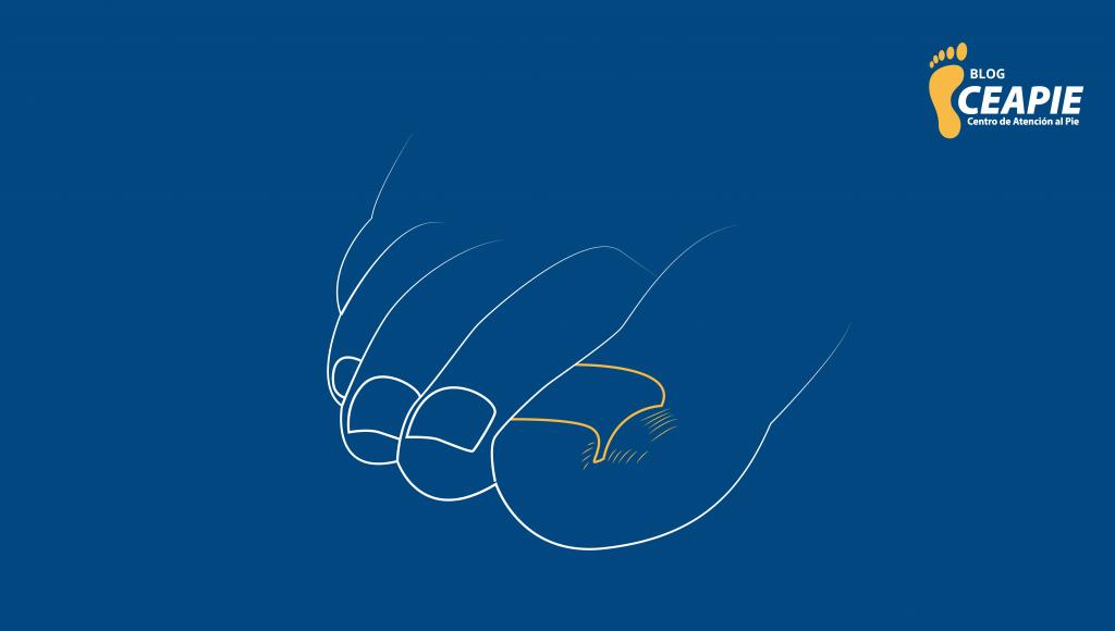 Onicocriptosis-cover-ceapie