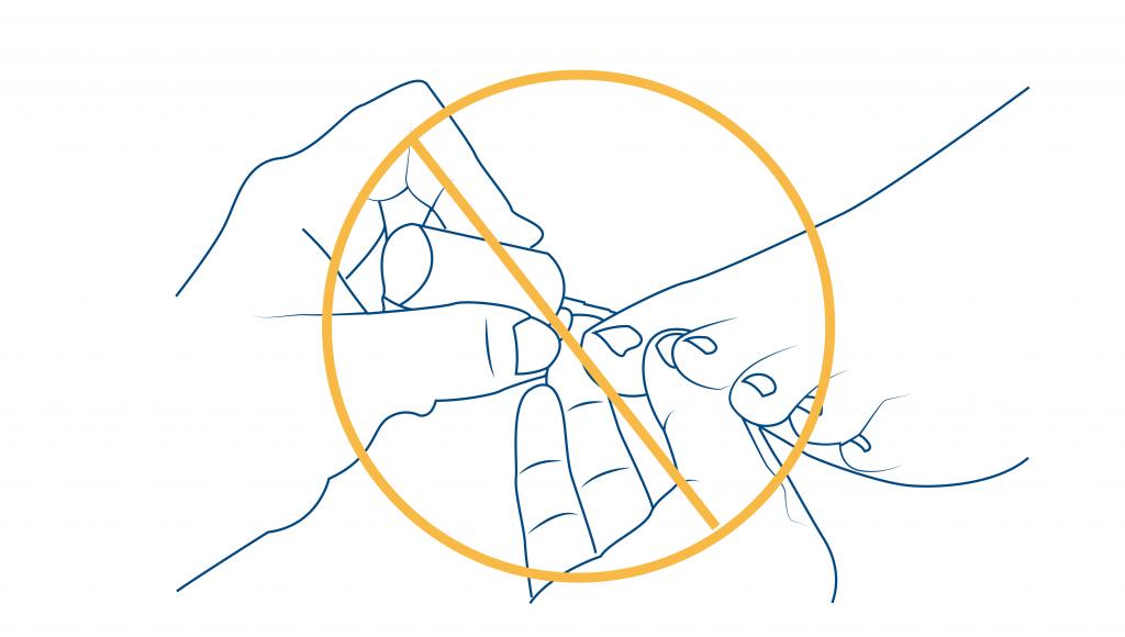 Onicocriptosis-ceapie-blog-pedicure