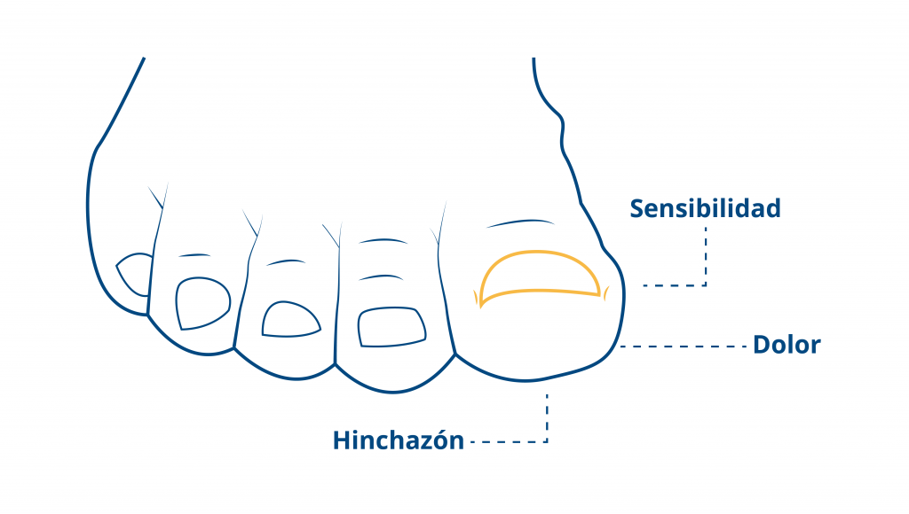 síntomas-onicocriptosis-blog-ceapie