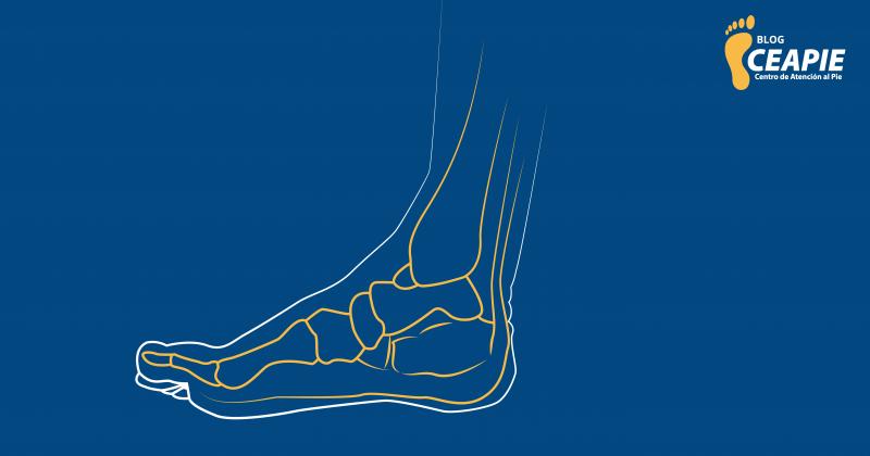 Con este estudio podrás mejorar tu postura y forma de caminar