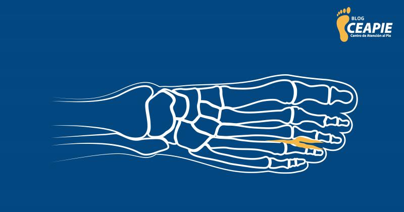 Neuroma de Morton: Una enfermedad más común de lo que crees