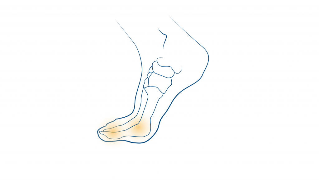 Neuroma-de-morton-ceapie-blog (1)