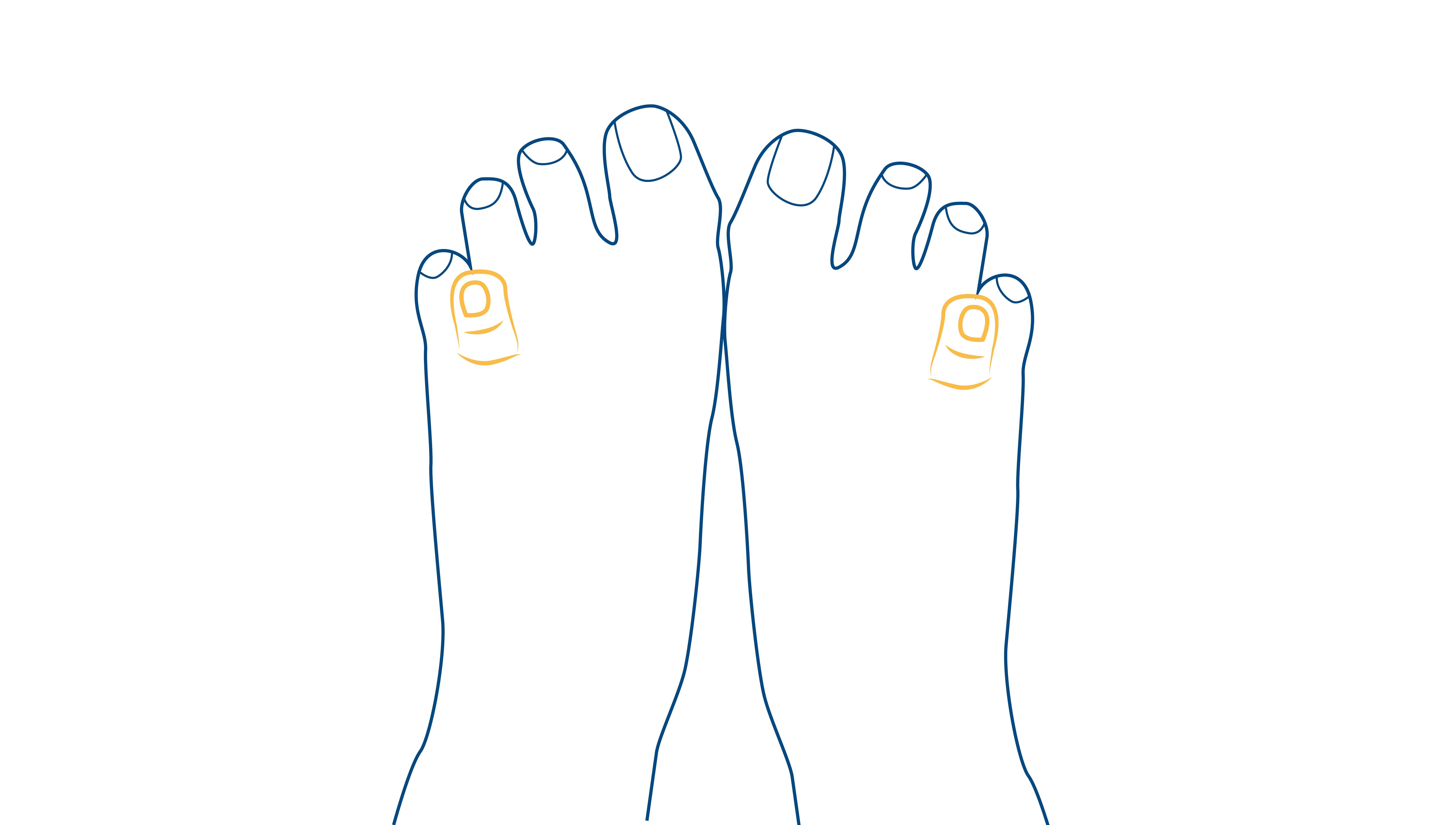 Blog-CEAPIE-pie-de-recien-nacido-dedos-superpuestos