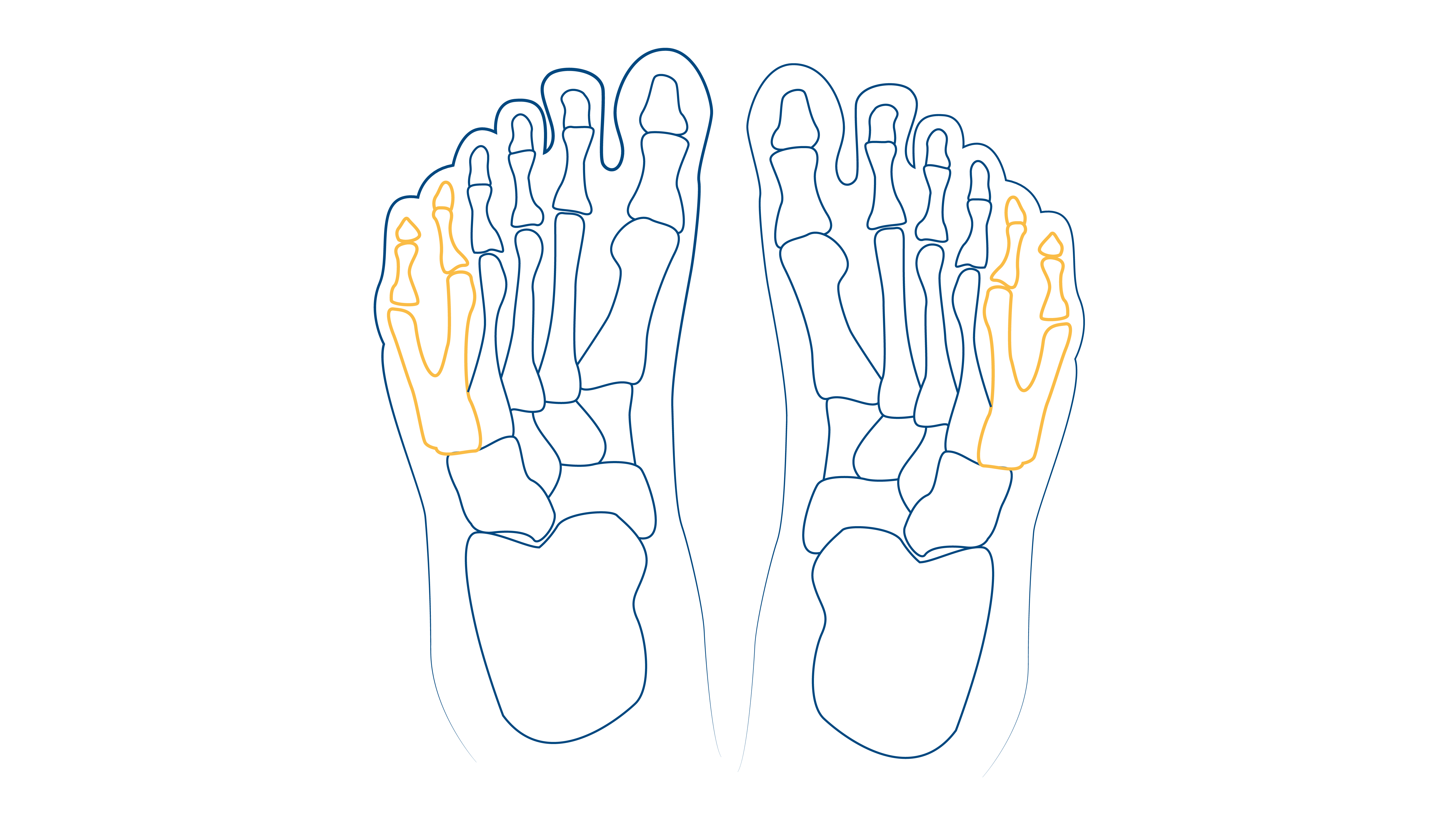 Blog-CEAPIE-pie-de-recien-nacido-dedos-supernumerarios
