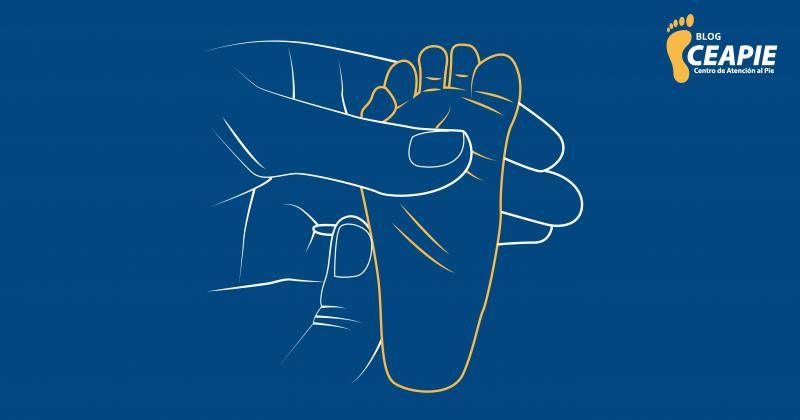 4 problemas de los pies presentes desde el nacimiento