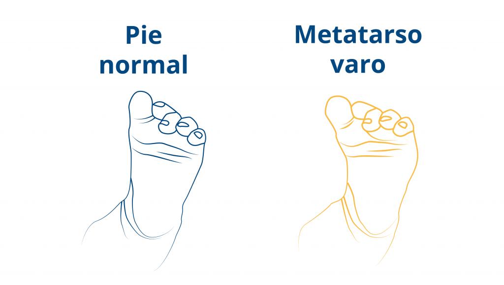 blog-CEAPIE-metatarso-varo-pie-del-recien-nacido