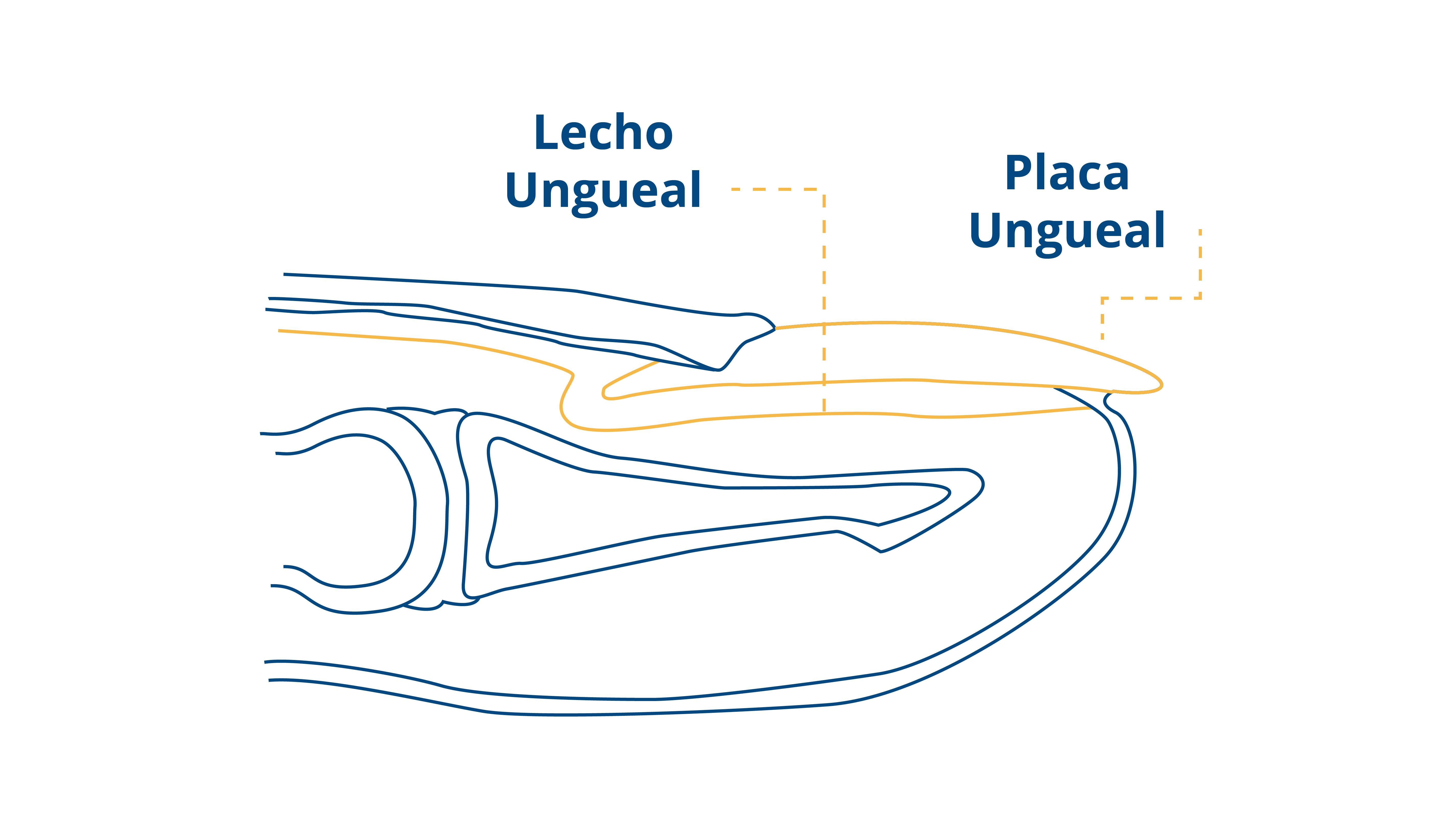 Blog-CEAPIE-Onicolisis (3)