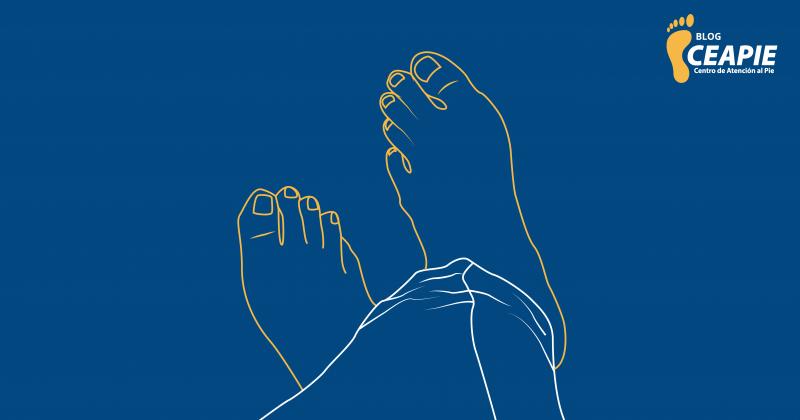 La artrosis también puede afectar a tus pies
