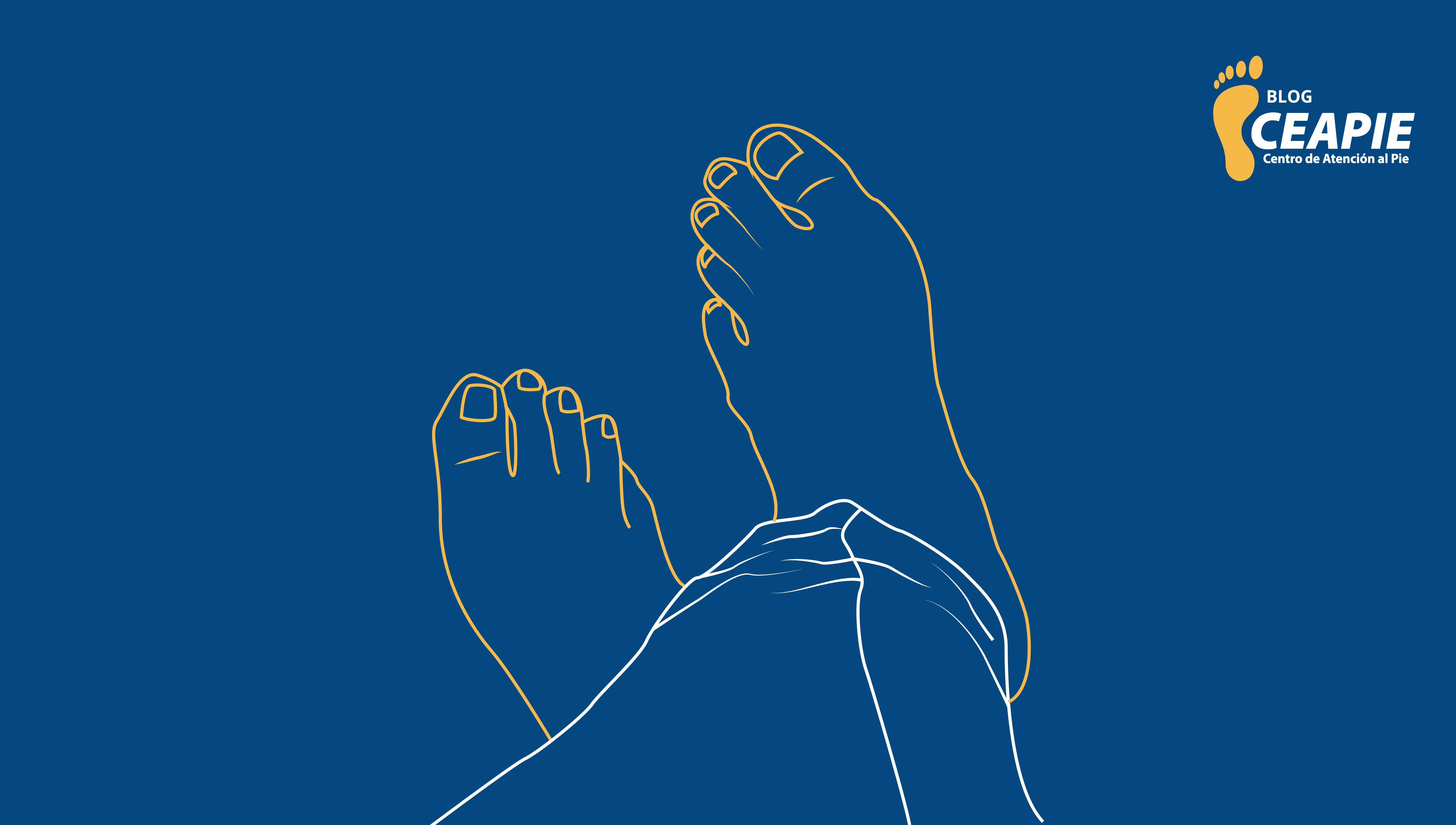 Blog-CEAPIE-artrosis-en-los-pies (2)