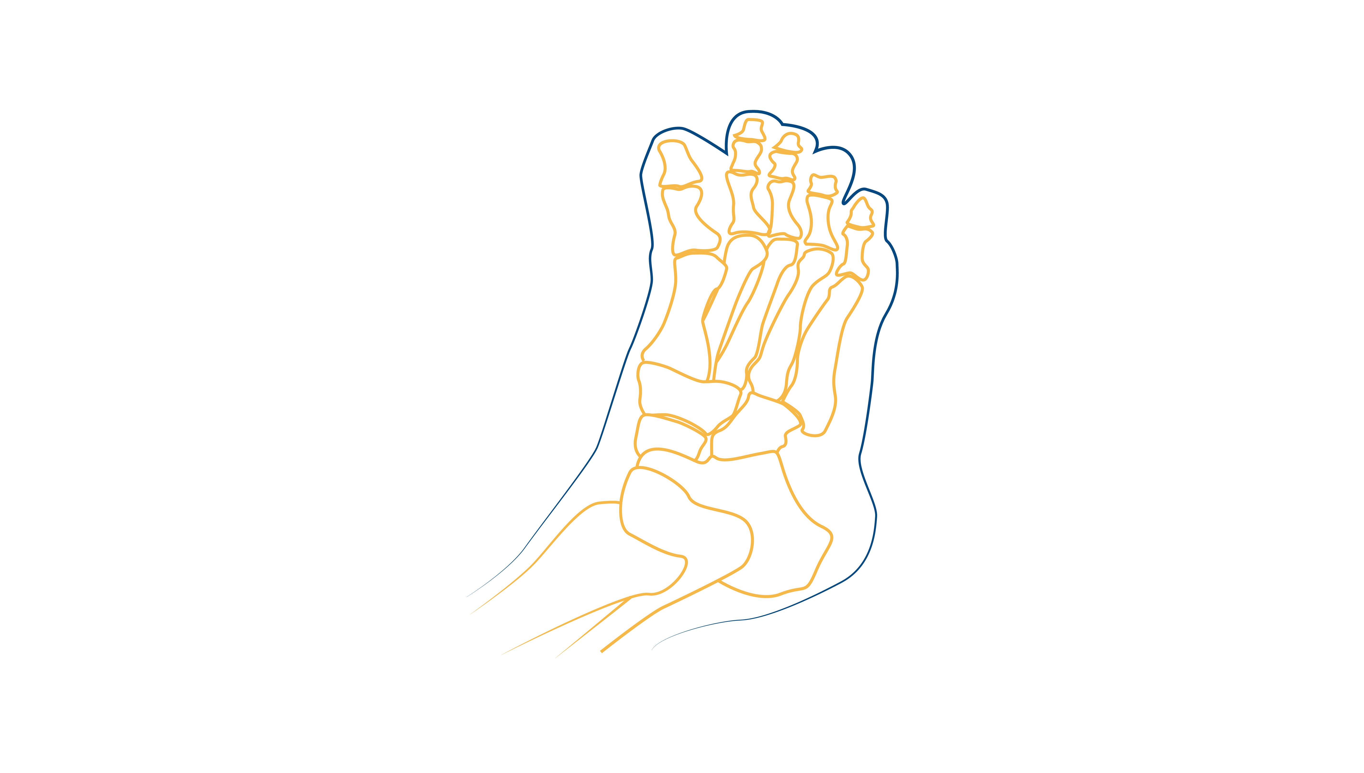 Blog-CEAPIE-artrosis-en-los-pies (3)