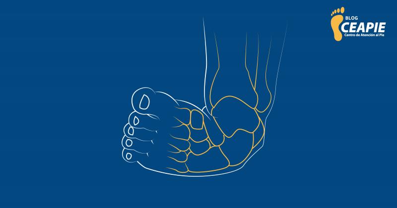 Pie zambo o equinovaro, una condición que afecta los pies de los bebés