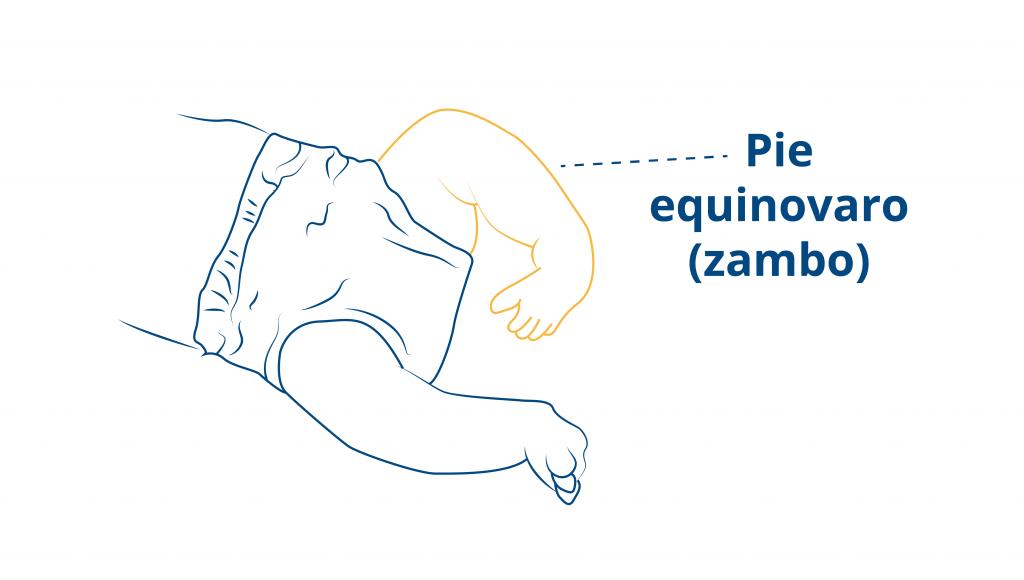 Blog-CEAPIE-pie-zambo-o-equinovaro-bebe (2)