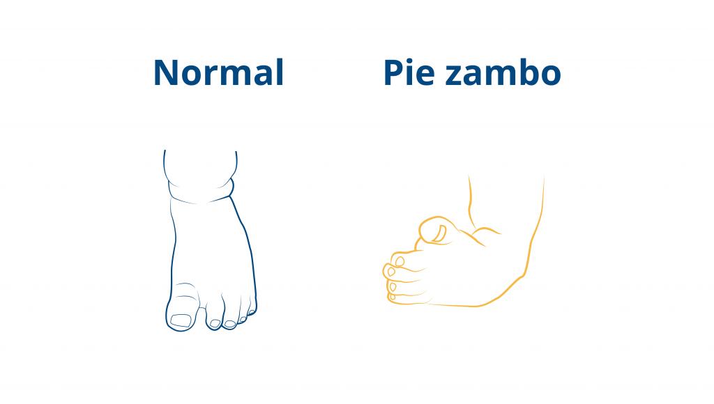 Blog-CEAPIE-pie-zambo-o-equinovaro-bebe (3)