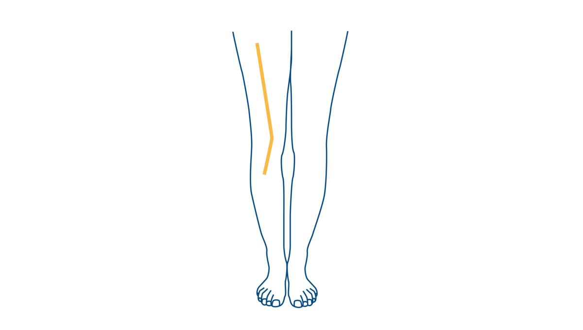 Blog-CEAPIE-Pies-Torcidos-Ortopodologia-Merida 2021 (3)
