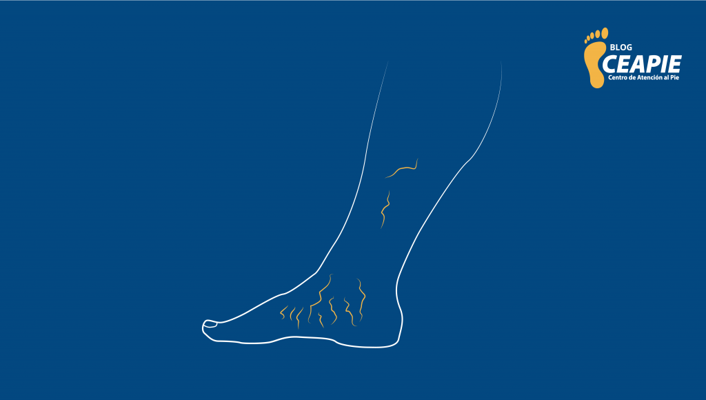 Blog-CEAPIE-Varices-Ulceras-Insuficiencia-Venosa (2)