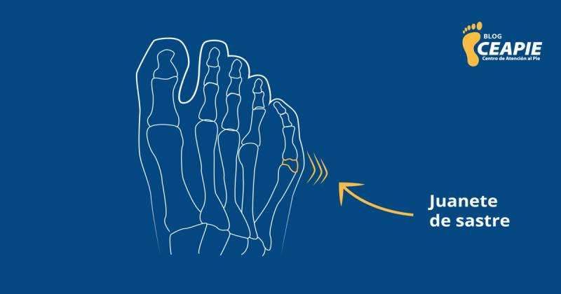 Juanetillo: Un padecimiento que provoca dolor al caminar