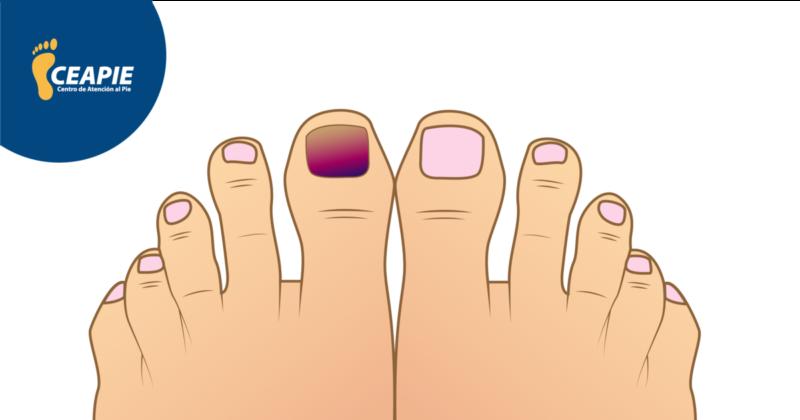 5 problemas más comunes en las uñas de los pies