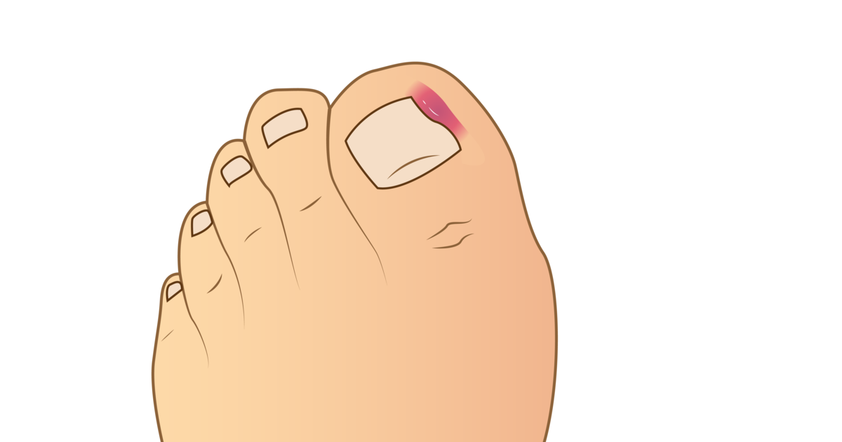 Blog-CEAPIE-5-padecimientos-mas-comunes-en-las-uñas-de-los-pies-2021 (4)